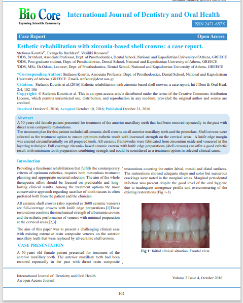 Esthetic rehabilitation with zirconia-based shell crowns: a case report