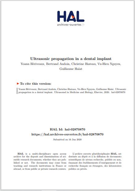 Ultrasonic propagation in a dental implant