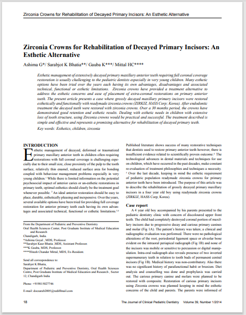 Zirconia Crowns for Rehabilitation of Decayed Primary Incisors: An Esthetic Alternative