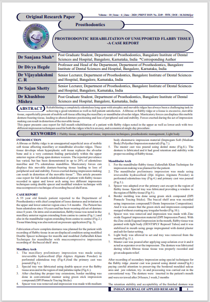 PROSTHODONTIC REHABILITATION OF UNSUPPORTED FLABBY TISSUE -A CASE REPORT